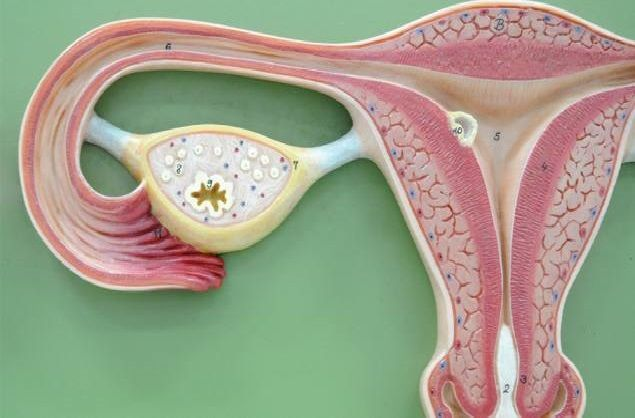 ovarian cyst discharge instructions